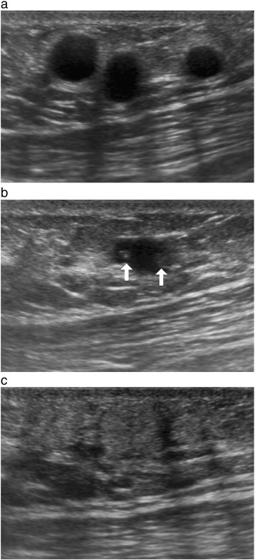 Traumatic fat necrosis of male breast - ScienceDirect