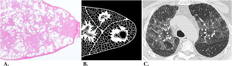 Cross Sectional Imaging Of Pulmonary Fibrosis Translating Pathology