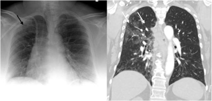 Portable Chest X Ray In Coronavirus Disease 19 Covid 19 A Pictorial Review Sciencedirect