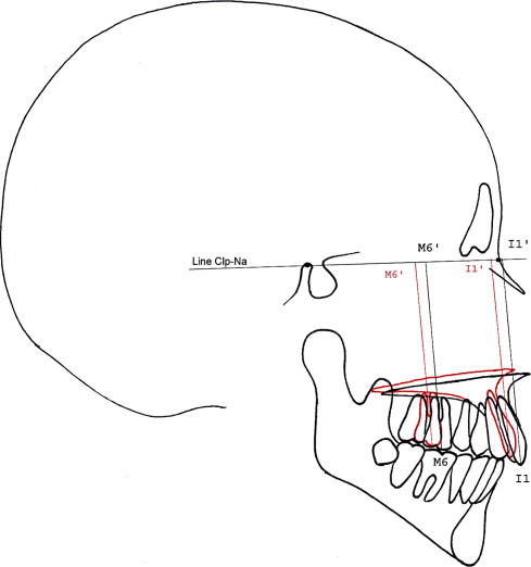 precision of maxillary repositioning during orthognathic surgery a Partial Wisdom Tooth Extraction download full size image