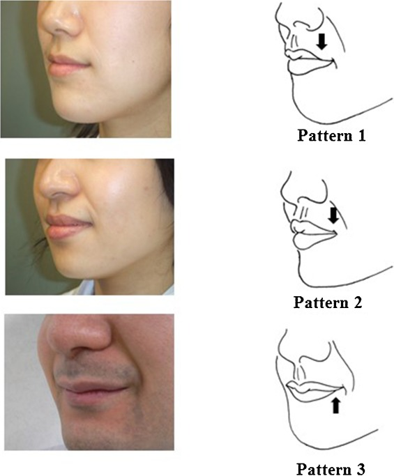 Standard Morphology Of The Oral Commissure And Changes Resulting