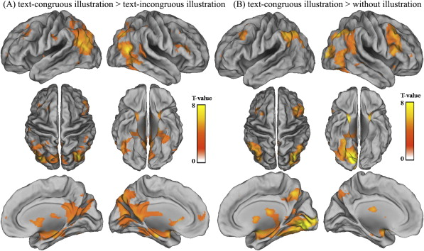 Neural correlates of second language reading comprehension in the download full size image fandeluxe Gallery