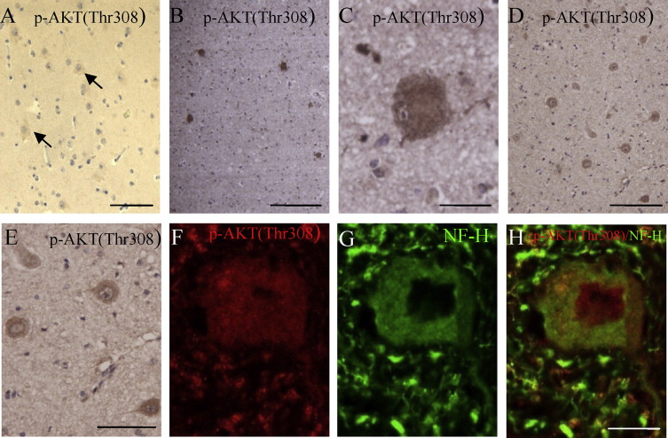 Similar PDK1–AKT–mTOR pathway activation in balloon cells