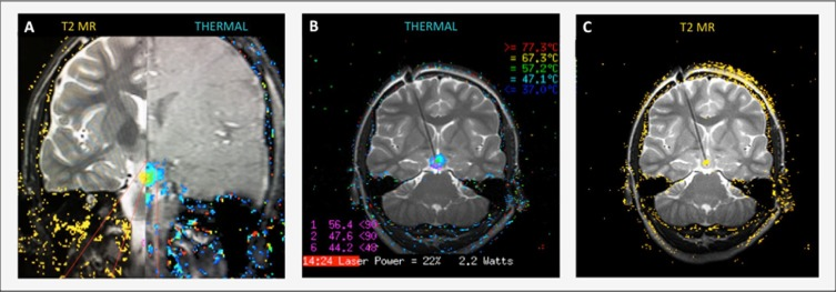 MR-guided laser ablation for the treatment of hypothalamic