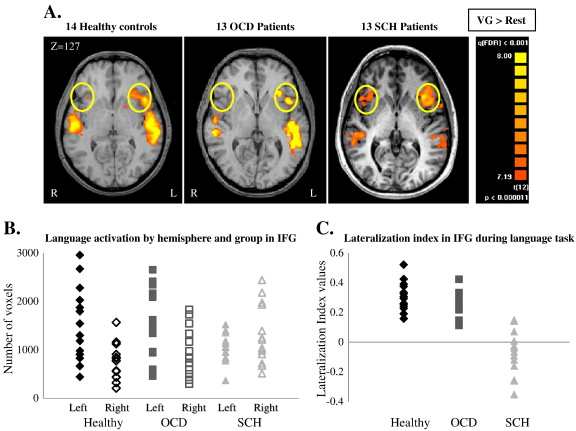 disturbed macro connectivity in schizophrenia