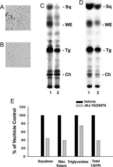 A melanocortin receptor 1 and 5 antagonist inhibits sebaceous gland