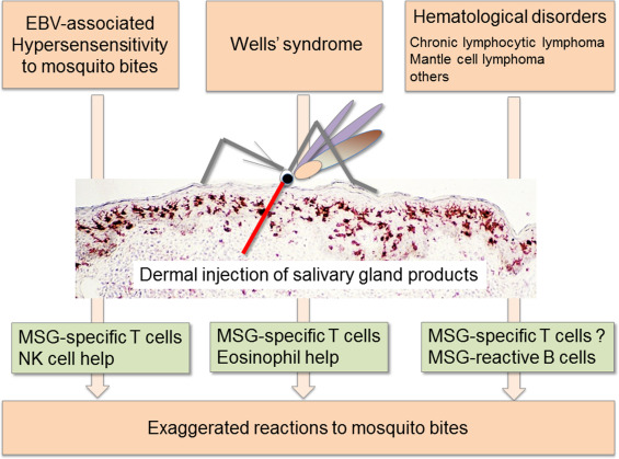 Clinical Categories Of Exaggerated Skin Reactions To Mosquito Bites