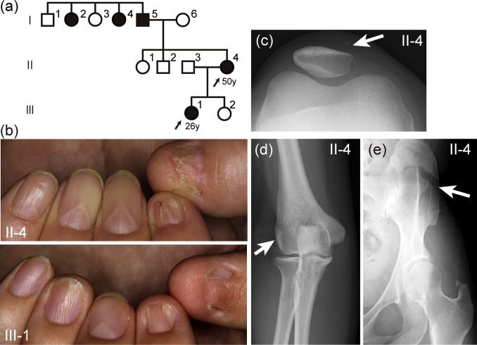 A familial case of nail patella syndrome with a heterozygous in ...