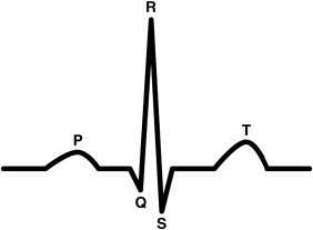 An adaptive filtering approach for electrocardiogram (ECG) signal