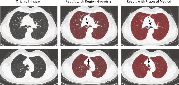 A novel approach of lung segmentation on chest CT images using graph
