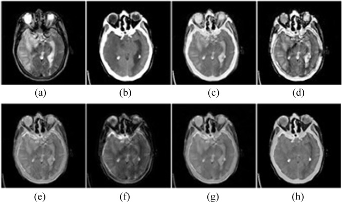 An overview of multi-modal medical image fusion - ScienceDirect