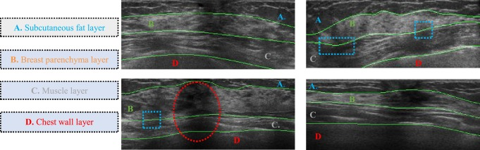 Segmentation Of Breast Anatomy For Automated Whole Breast