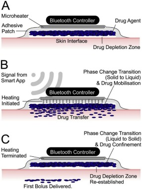 A wireless smart patch for the controlled repetitive transdermal