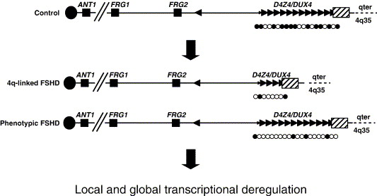 Facioscapulohumeral muscular dystrophy - ScienceDirect