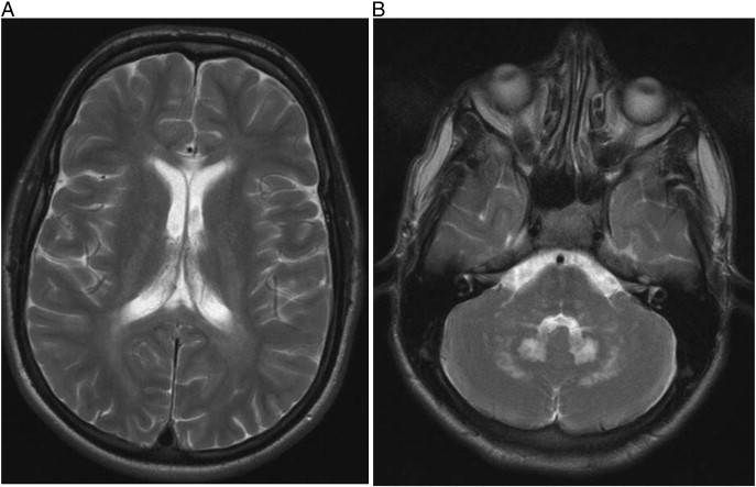 Clinical diagnosis, biochemical findings and MRI spectrum of