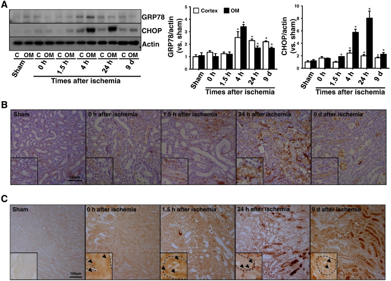 C/EBP homologous protein (CHOP) gene deficiency attenuates