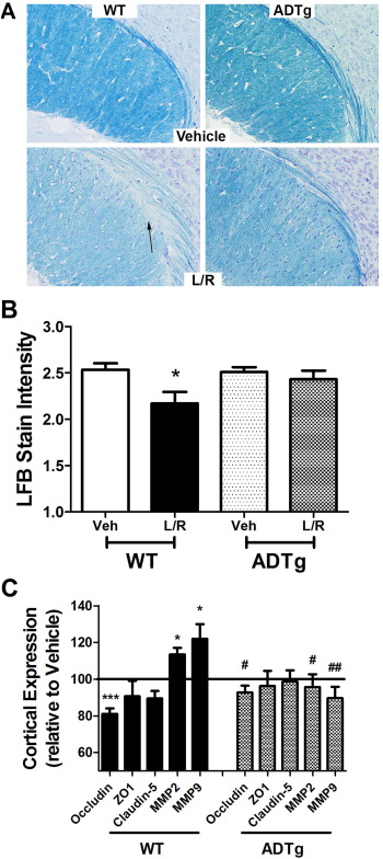 Elevated adiponectin prevents HIV protease inhibitor toxicity and