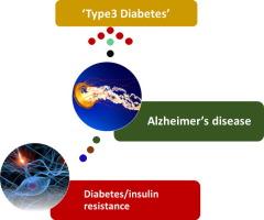 is alzheimer s disease a type 3 diabetes a critical appraisal