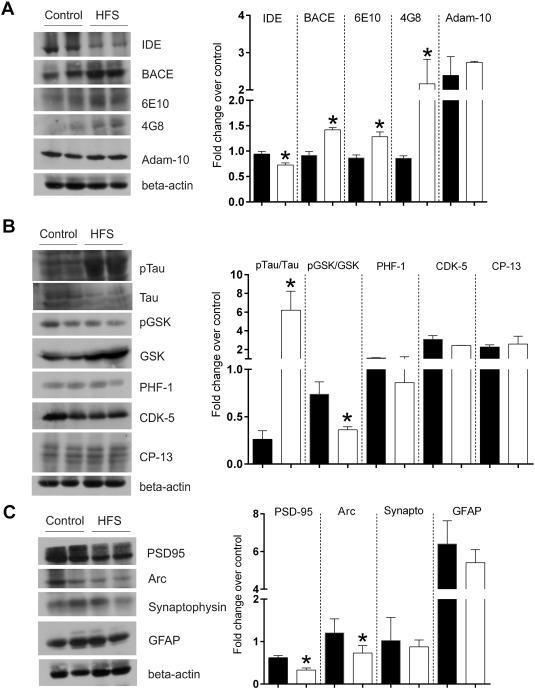 sucrose diet mice akt heart