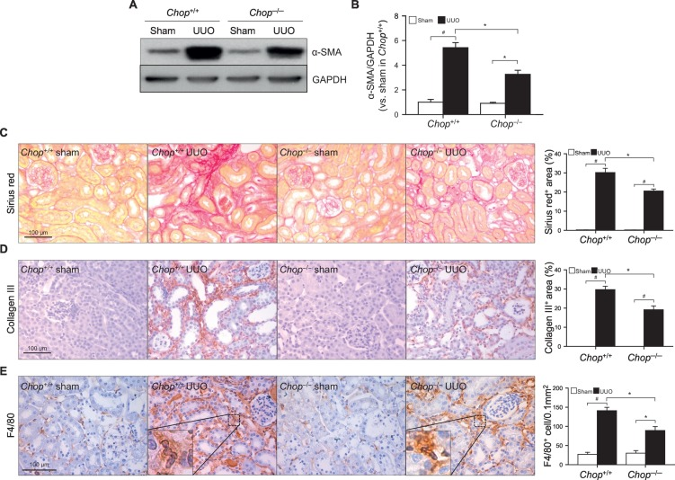 Ablation of C/EBP homologous protein attenuates renal