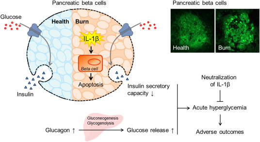 Acute pancreatic beta cell apoptosis by IL-1β is responsible for ...