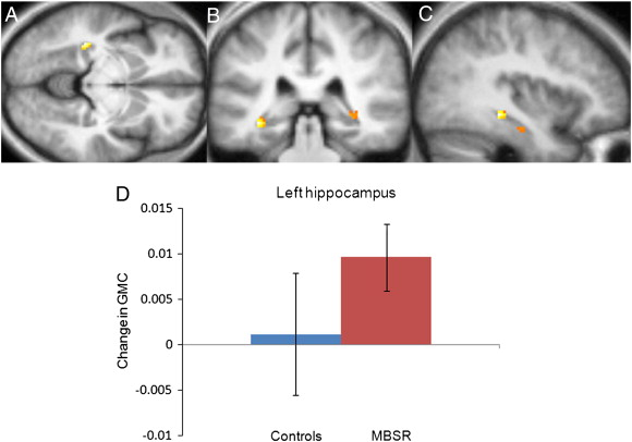 Gray Matter Density Increases During >> Mindfulness Practice Leads To Increases In Regional Brain Gray