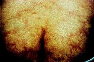 Livedo reticularis and cerebrovascular accidents (Sneddon's