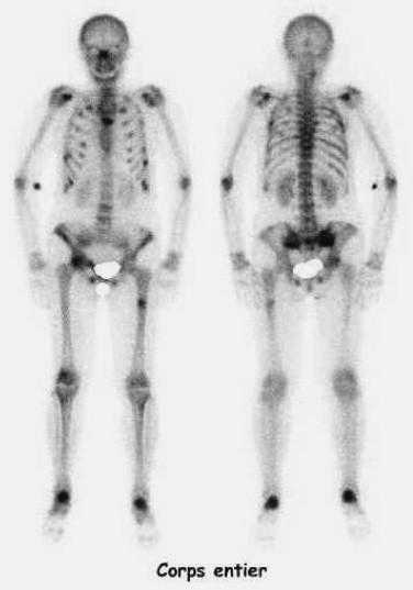 Une ostéomalacie liée à un diabète phosphoré – rôle de la ...
