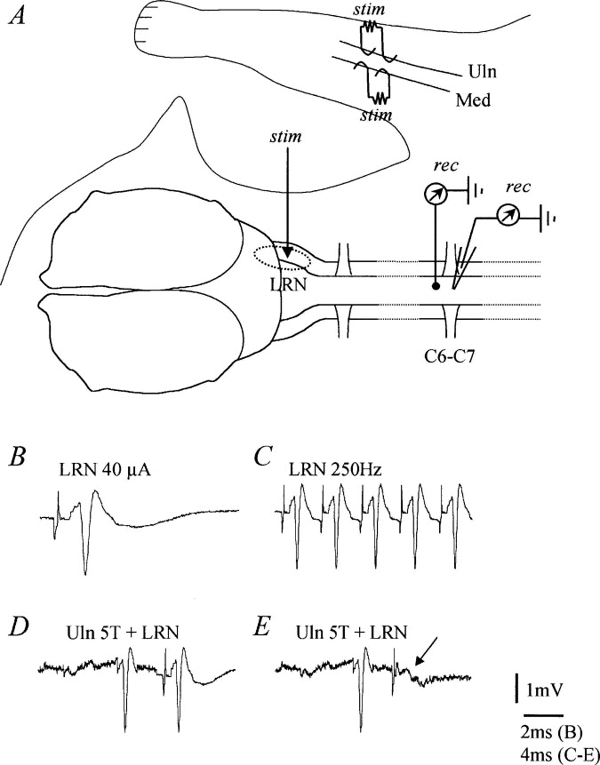 Projection To The Lateral Reticular Nucleus From Neurons Located In