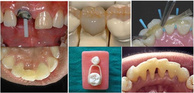 An Update On Glass Fiber Dental Restorative Composites A