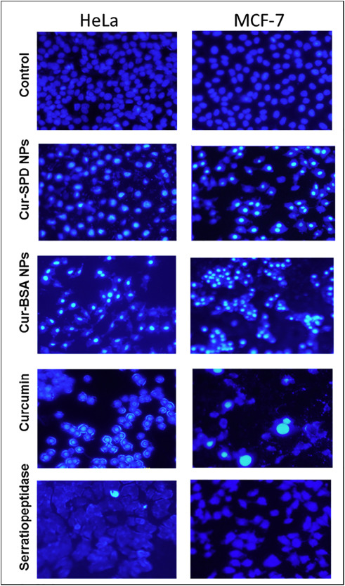 Co-delivery of curcumin and serratiopeptidase in HeLa and
