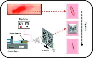 Nanodiamond/poly-ε-caprolactone nanofibrous scaffold for