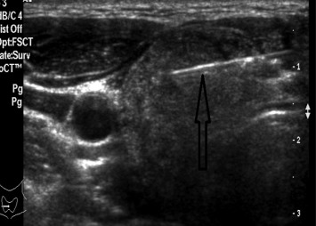 Ultrasonographic Features Of Diffuse Sclerosing Variant Of