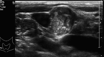 Ultrasonographic Features Of Diffuse Sclerosing Variant Of Papillary Thyroid Carcinoma Sciencedirect