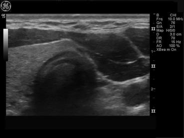 Thyroid Hemiagenesis A Sonographic Diagnosis Sciencedirect