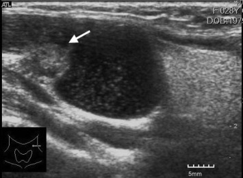 Occult Papillary Thyroid Carcinoma Initially Presenting As Cervical Cystic Lymph Node Metastasis Report Of Two Cases Sciencedirect
