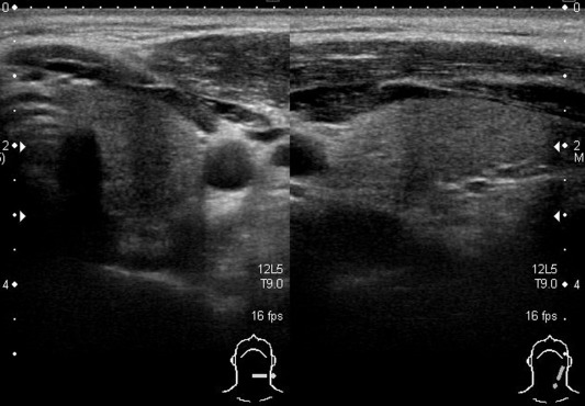 The Roles Of Ultrasonography And Ultrasonography Guided Fine