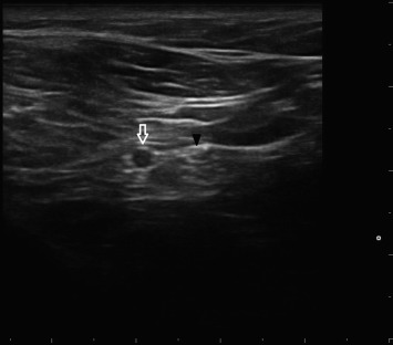 Ultrasound-guided Perineural Vitamin B12 Injection for