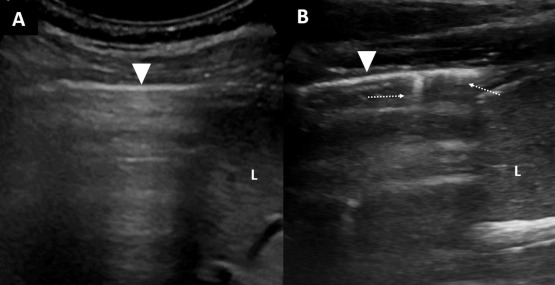 The Curtain Sign in Lung Ultrasound - ScienceDirect