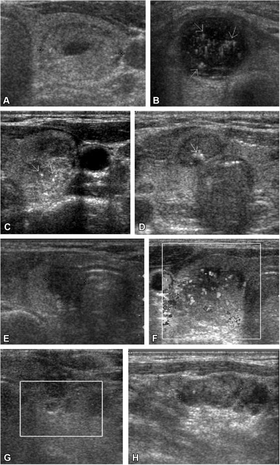 Sonographic Criteria Predictive Of Benign Thyroid Nodules Useful