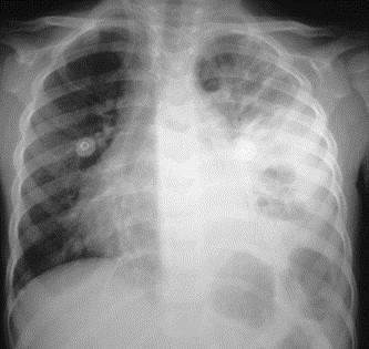 Pneumonie nécrosante de l'enfant : à propos de 4 cas - ScienceDirect
