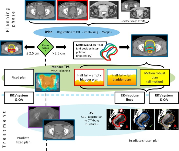 Image guided adaptive external beam radiation therapy for cervix ...