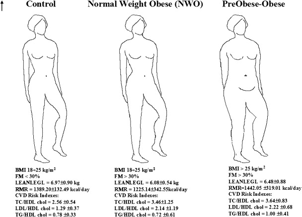 Normal Weight Obese Nwo Women An Evaluation Of A Candidate New Syndrome Sciencedirect