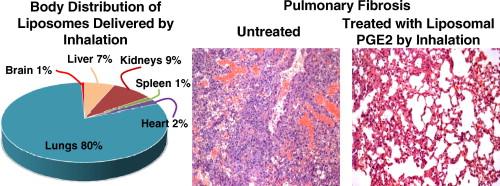 Inhalation treatment of pulmonary fibrosis by liposomal