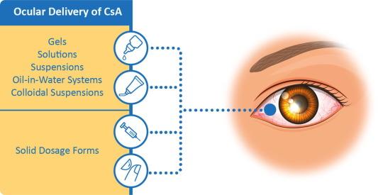 Cyclosporine A delivery to the eye: A comprehensive review