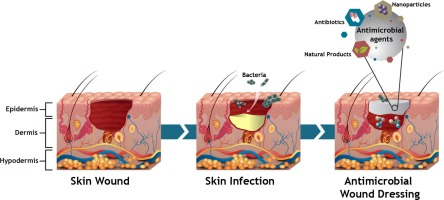 Recent Advances On Antimicrobial Wound Dressing A Review