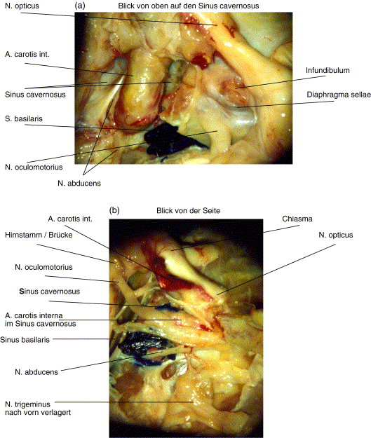 Mikroanatomie des Sinus cavernosus - ScienceDirect