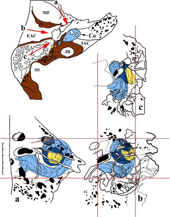 Surgical anatomy of the cochlea for cochlear implantation ...