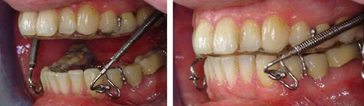 a michigan type occlusal splint with spring loaded mandibular protrusion functionality for treatment of anterior disk dislocation with reduction sciencedirect a michigan type occlusal splint with