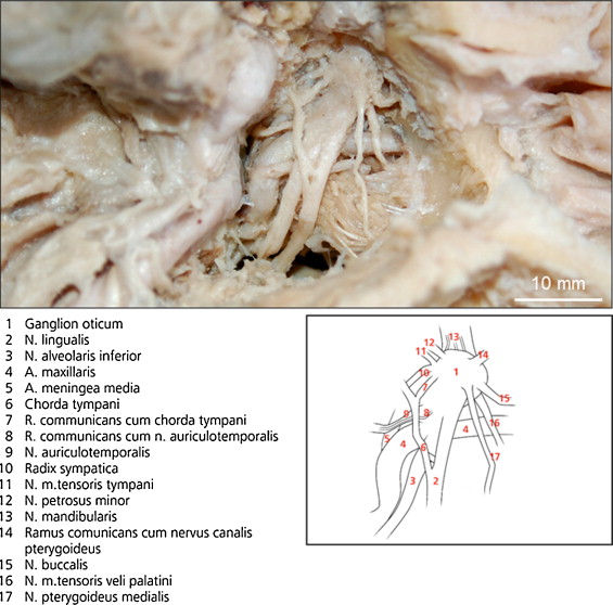 Topography Syntopy And Morphology Of The Human Otic Ganglion A